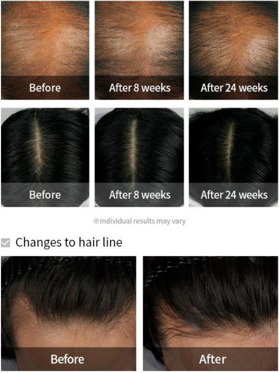 Dermatical Hair-Loss Shampoo